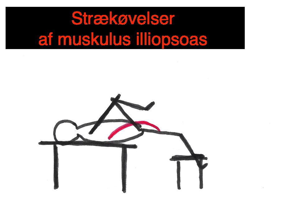 Osteopati - muskulus iliopsoas, hyppig årsag til